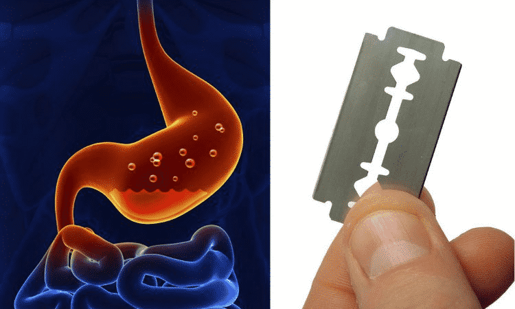 Human Stomach Can Dissolve Stainless steel.